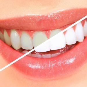 teeth-whitening-hd